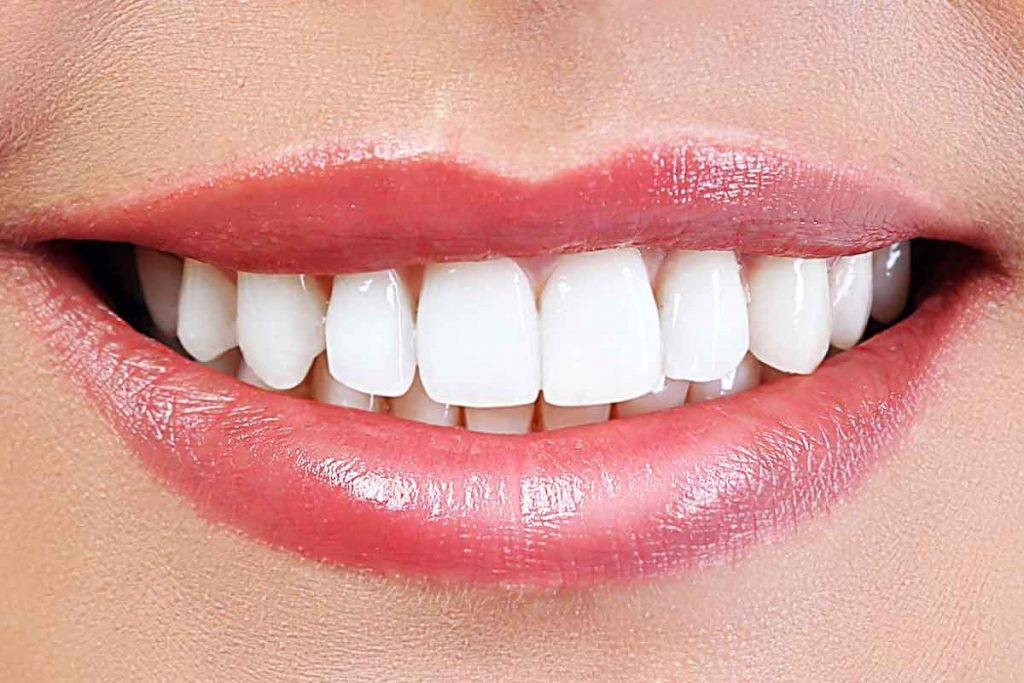Teeth Whitening Treatment